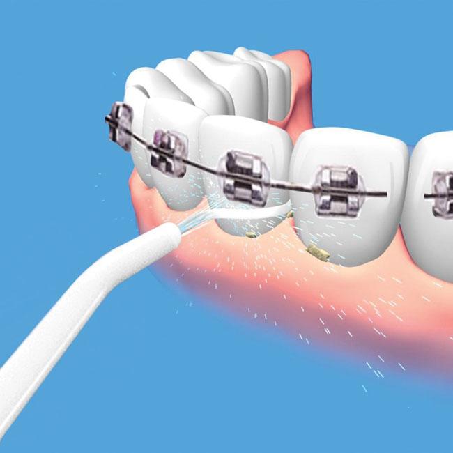 Bán buôn dụng cụ vệ sinh răng miệng Power Floss