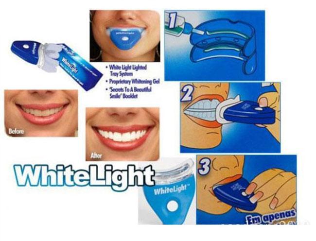Bán sỉ dụng cụ làm trắng răng tại nhà White Light